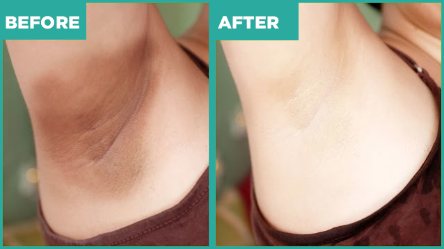 armpit bleaching before and after
